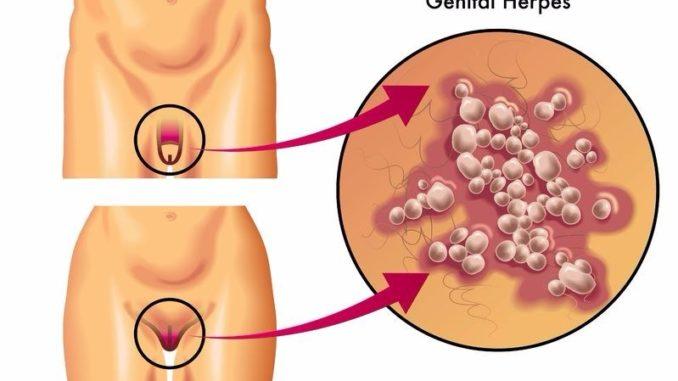 1 genital herpes transmission type HSV