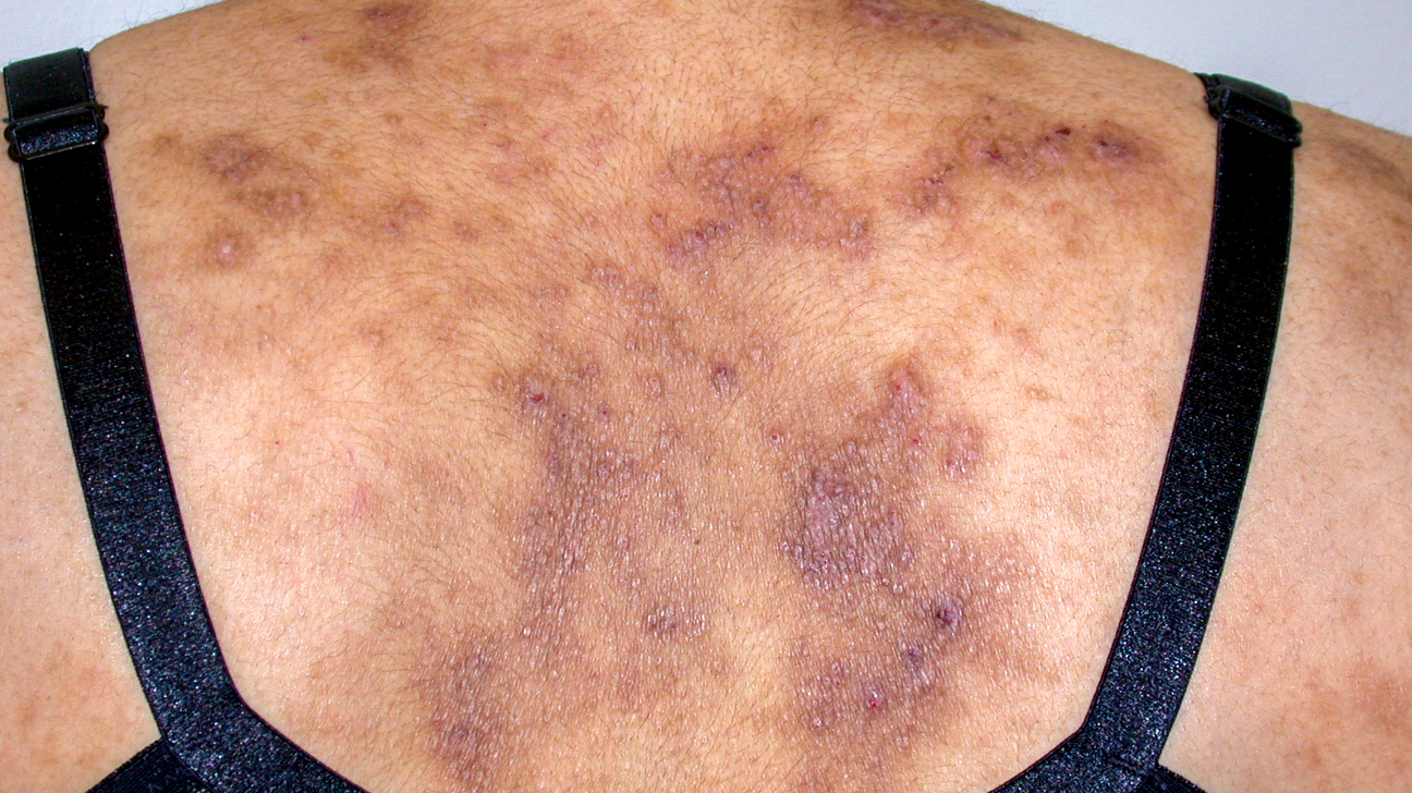 What Does HIV Rash Look Like and How to Treat it? - HEALTH ...